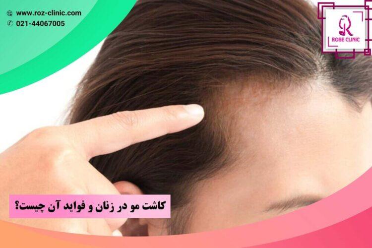 کاشت مو در زنان و فواید آن چیست؟