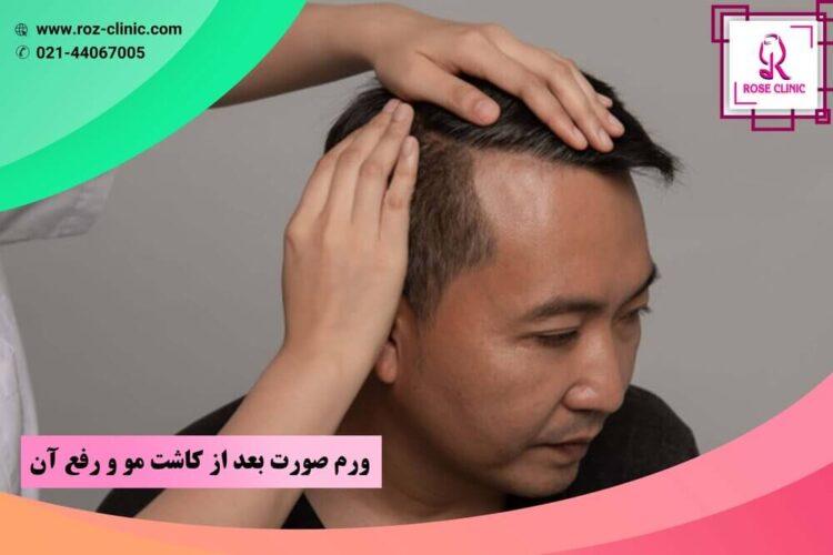 ورم صورت بعد از کاشت مو و رفع آن