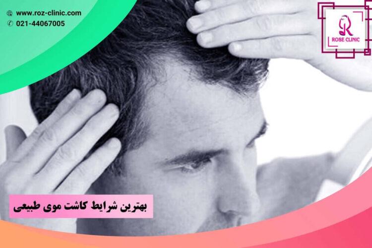 بهترین شرایط کاشت موی طبیعی