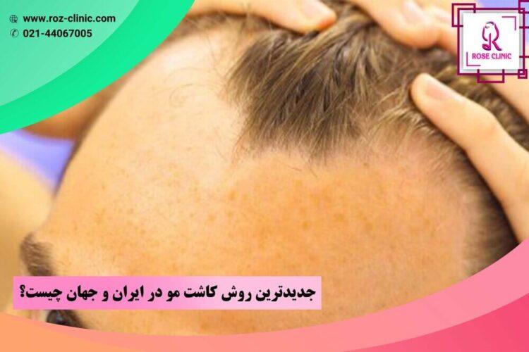 جدیدترین روش کاشت مو در ایران و جهان چیست؟