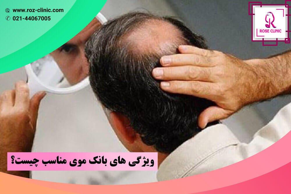 کاشت مو با بانک موی ضعیف