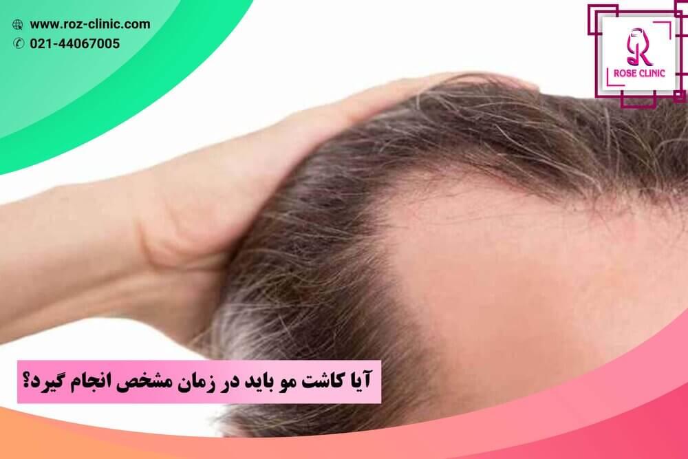 آیا کاشت مو باید در زمان مشخص انجام گیرد؟