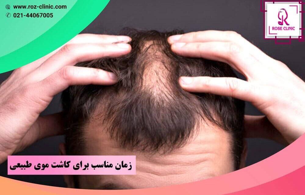 زمان مناسب برای کاشت موی طبیعی