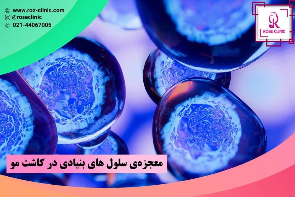 سلول بنیادی کاشت مو