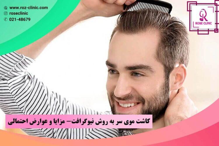 کاشت مو به روش نیوگرافت