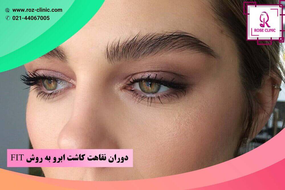 Recovery period of eyebrow implantation by fit method