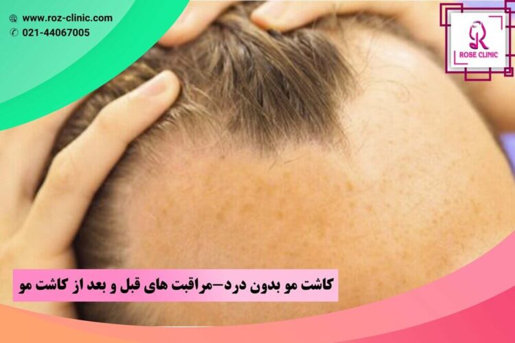 Painless hair transplant, pre- and post-hair care