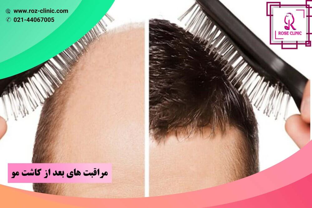 Care after hair transplant