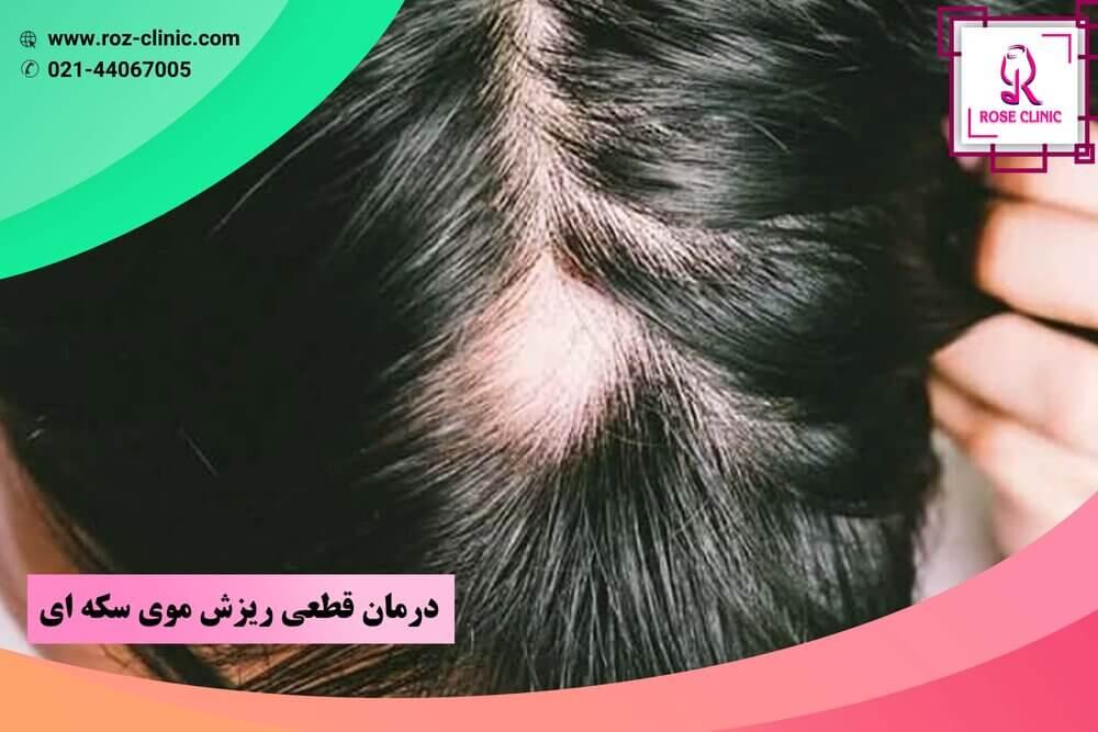 درمان قطعی ریزش موی سکه ای